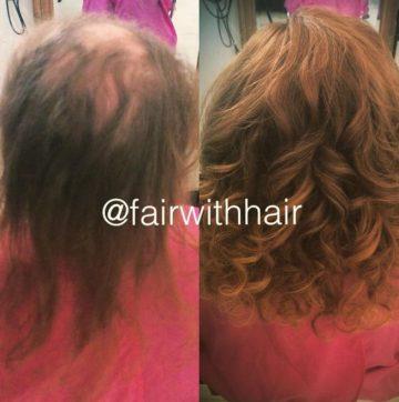 hårförlängning med closure
