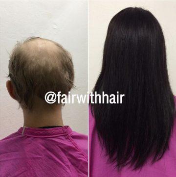 harersattning peruk äkta hår